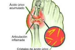 determinacion de acido urico wiener lab que es bueno para curar la gota acido urico bajo y orinar.mucho